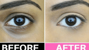 5 Ways to Get Rid of Eye Bags and Puffiness