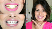 Make Your Teeth Whiter Naturally