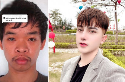 After Being Made Fun Of By An Interviewer, Vietnamese Man Decides To Spend RM70k To Change His Face