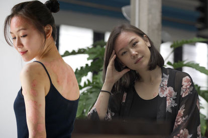 'Give Your Pain A Purpose': Psoriasis Advocate Rocyie Wong Gets Comfortable In Her Own Skin
