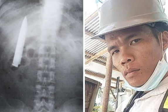 filipino-man-shocked-to-find-10cm-blade-in-chest-during-regular-medical-examination
