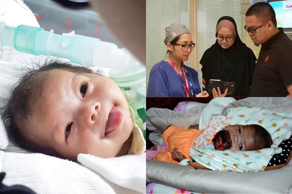 baby-ainul-mardhiah-s-tumour-succesfully-removed-after-5-hours-dr-amalina-che-bakri