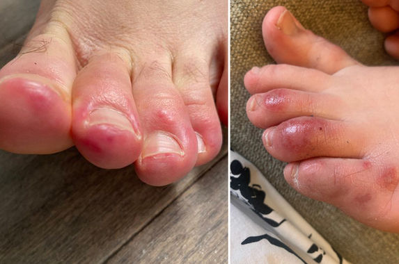 if-your-toes-are-swollen-purple-and-painful-to-the-touch-you-may-have-covid-19
