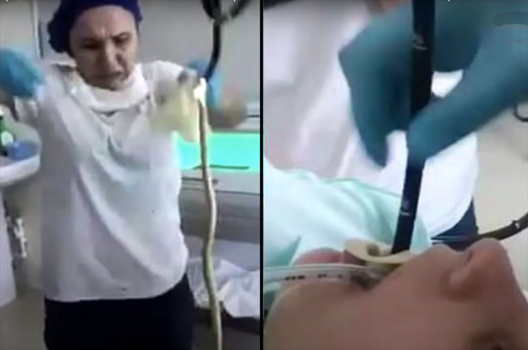 russian-woman-wakes-up-from-nap-to-find-a-four-foot-snake-inside-her-mouth